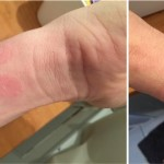 Apple Watch : des allergies sur les poignets de certains utilisateurs